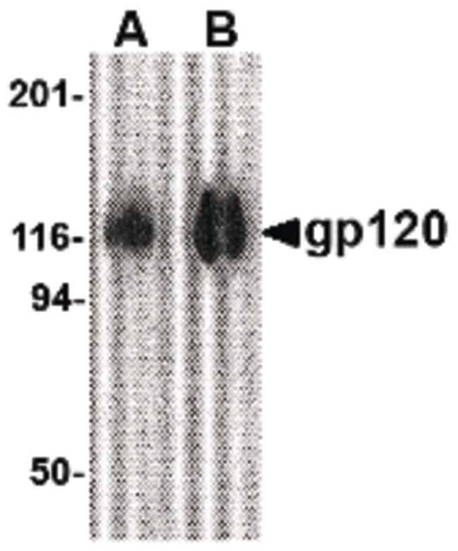 HIV1 gp120 Rabbit anti-Virus, Polyclonal, Invitrogen 100 µg; Unconjugated