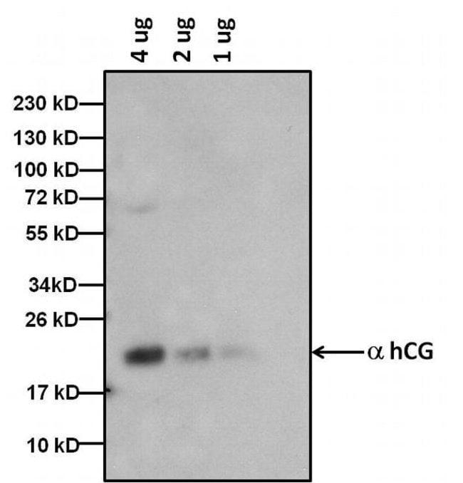 hCG Mouse anti-Human, Clone: 3015, Invitrogen 1 mg; Unconjugated