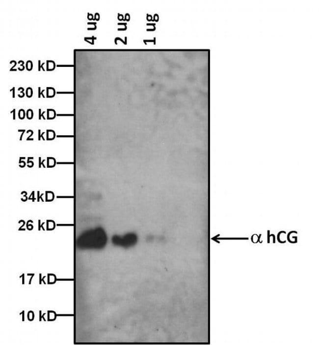 hCG Mouse anti-Human, Clone: 34P2C2, Invitrogen 1 mg; Unconjugated