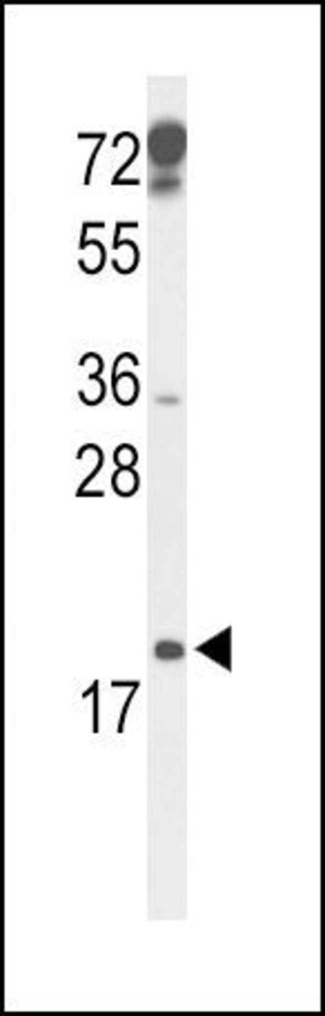 p19 INK4d Rabbit anti-Human, Mouse, Polyclonal, Invitrogen 400 µL;