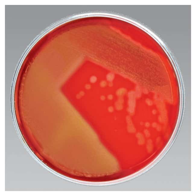 Thermo Scientific Blood Agar (TSA with Sheep Blood) Medium :Life Sciences:Microbiology